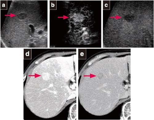 腫瘍 肝臓