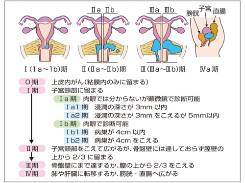 頚 癌 と は 子宮 腹腔鏡下手術による子宮頸がん治療|腹腔鏡手術の安藤正明【婦人科】子宮筋腫・子宮内膜症・子宮頸がん・子宮体がん・卵巣のう腫・子宮癌