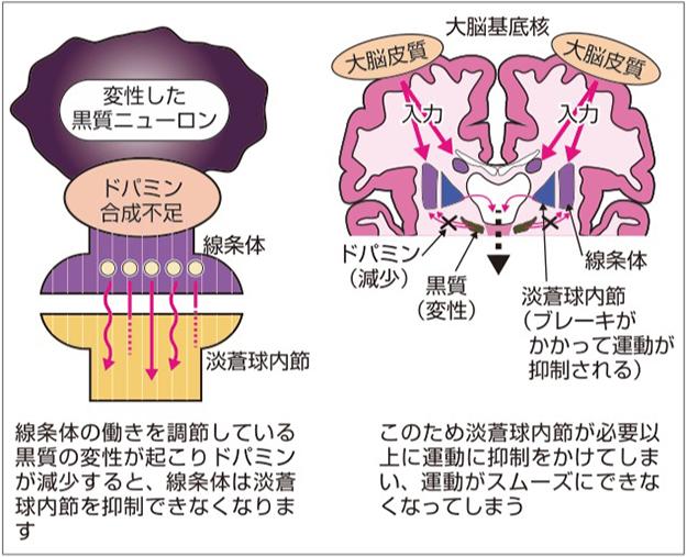 難病 パーキンソン 症候群 パーキンソン病とパーキンソン症候群