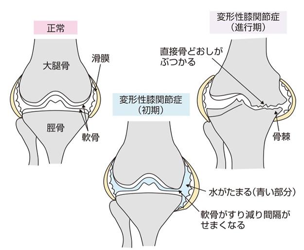 変形 性 膝 関節 症 看護