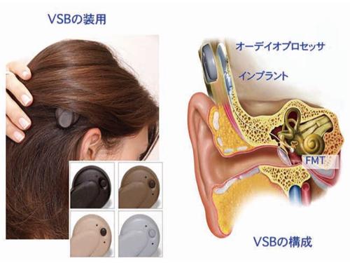 内耳 手術 人工