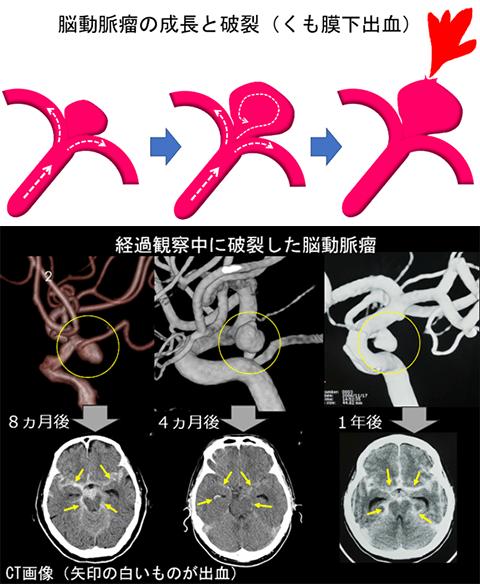 動脈 破裂 脳 瘤